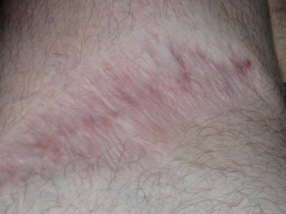 Picadura de arana reclusa marron 12