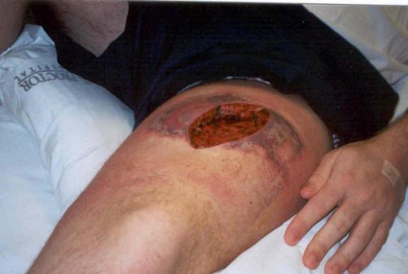 Picadura de arana reclusa marron 6